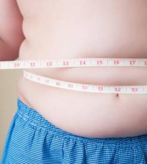 Óriási gond a gyermekkori obezitás
